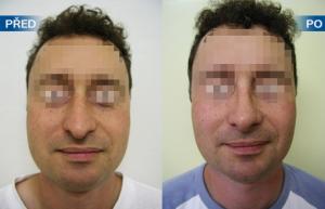 Pacient před a po plastické operaci nosu (rinoseptoplastika)