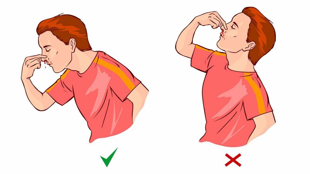 Co dělat při krvácení z nosu (epistaxe)