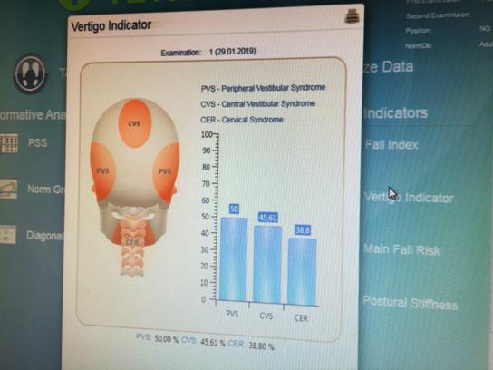 Diagnostika ohniska závratí - Vertigo indicator