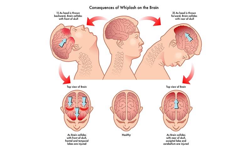 Jak vzniká opěrkové trauma neboli whiplash injury